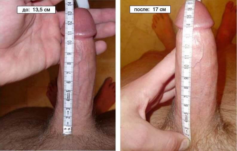 увеличение мужского члена до и после фото